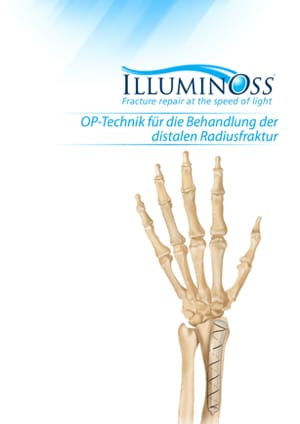 900489_B. Distal Radius Surgical Technique Guide (German)
